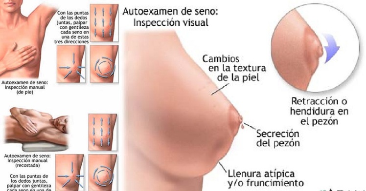 autoexamen-de-mama1
